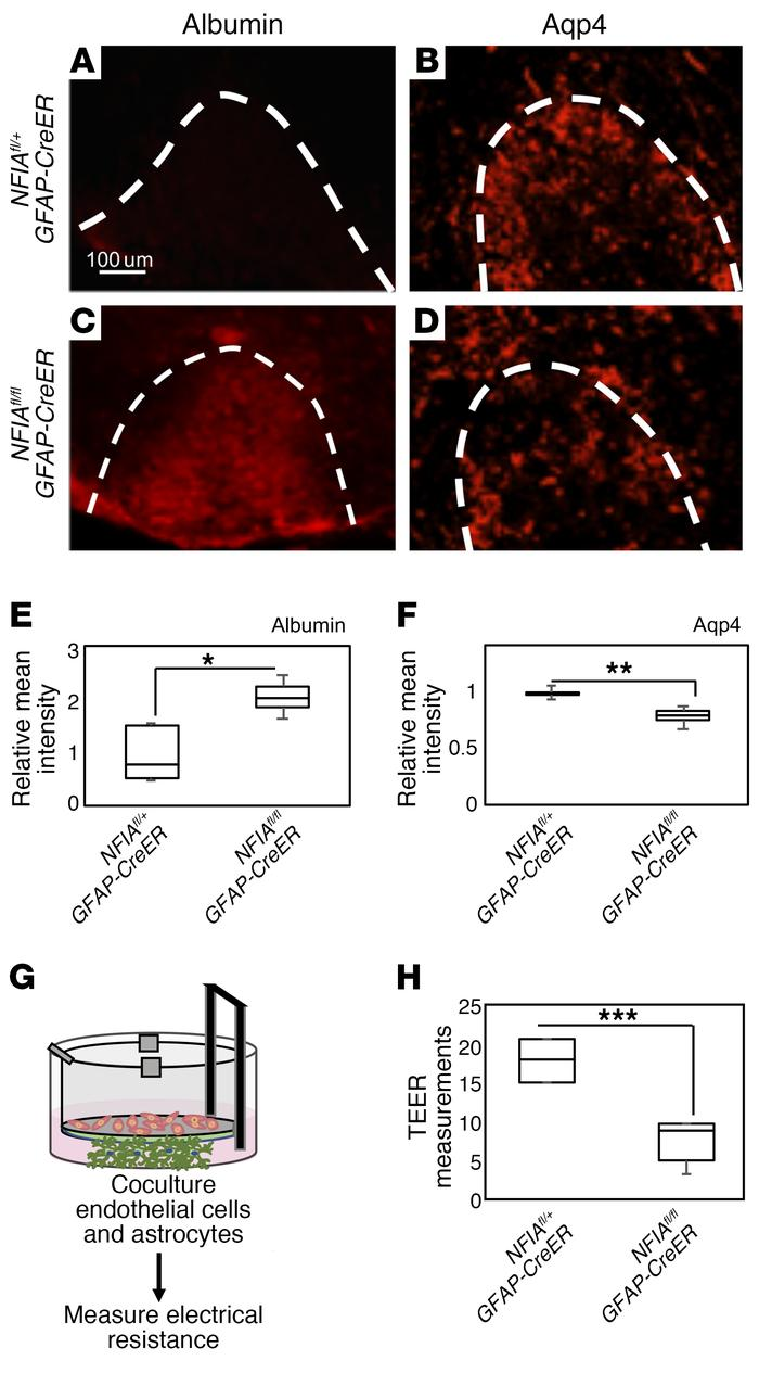NFIA-deficient astrocytes exhibit impaired BBB remodeling after WMI. (A–...