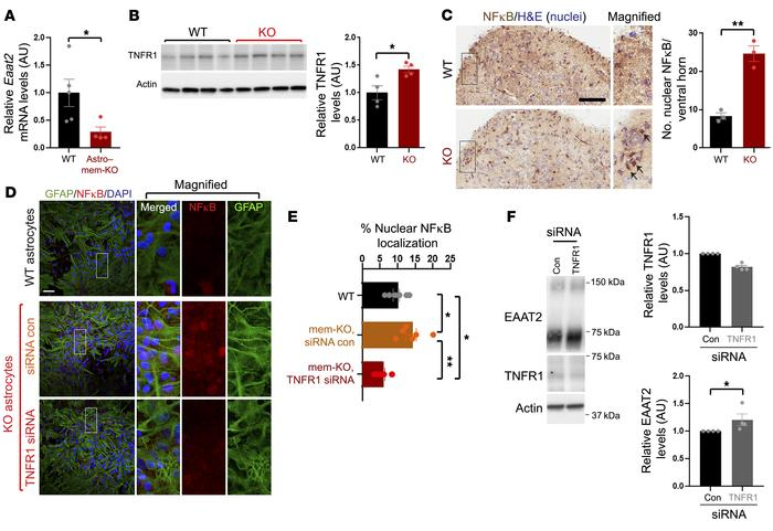 TNFR1/NFκB signaling mediates EAAT2 reductions resulting from membralin ...