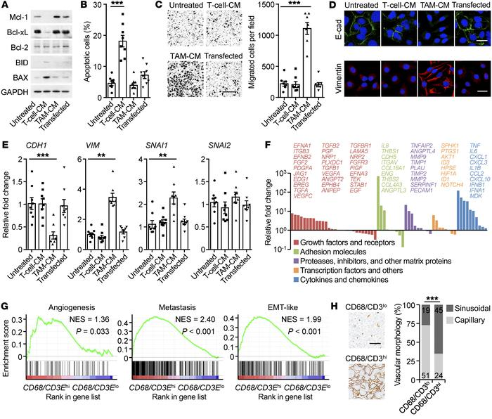 Macrophages and T cells induce PD-L1+ cancer cells with distinct cancer ...