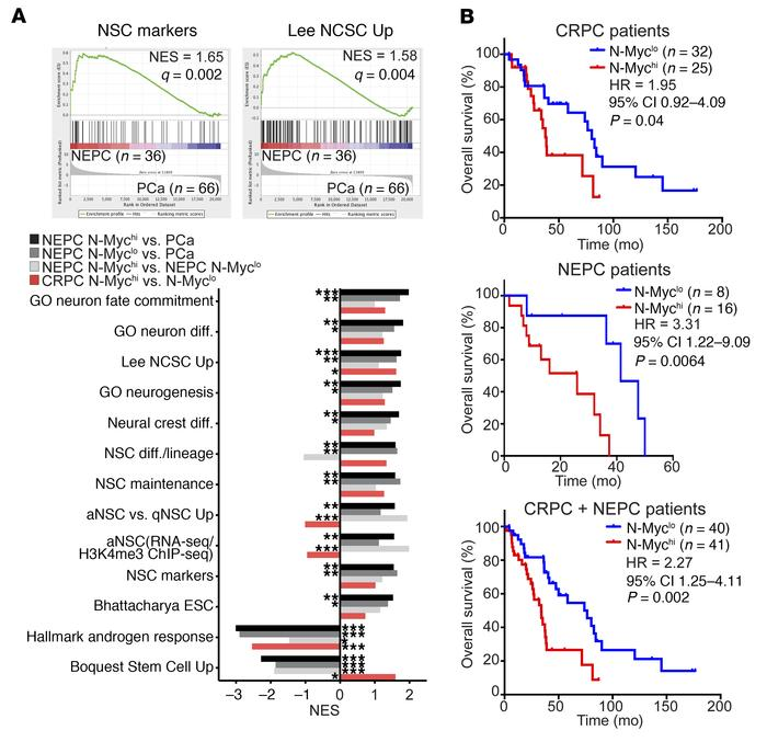 Clinical NEPC is associated with neural lineage. (A) Top: Enrichment plo...