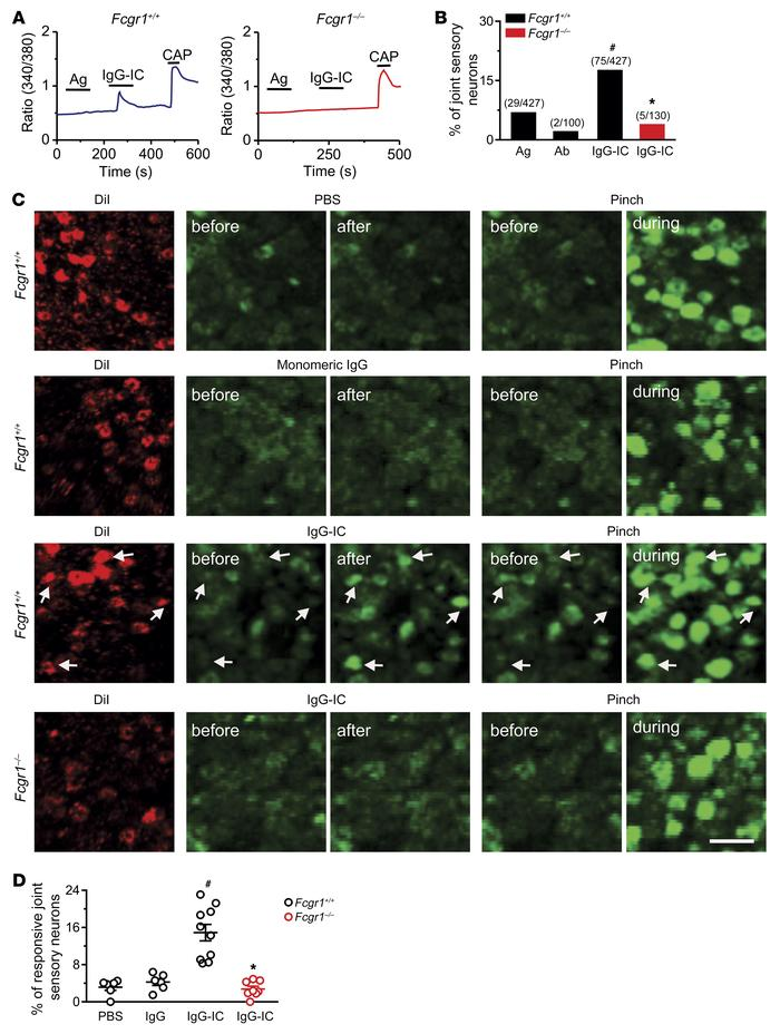 IgG-IC directly activates joint sensory neurons through FcγRI in vitro a...
