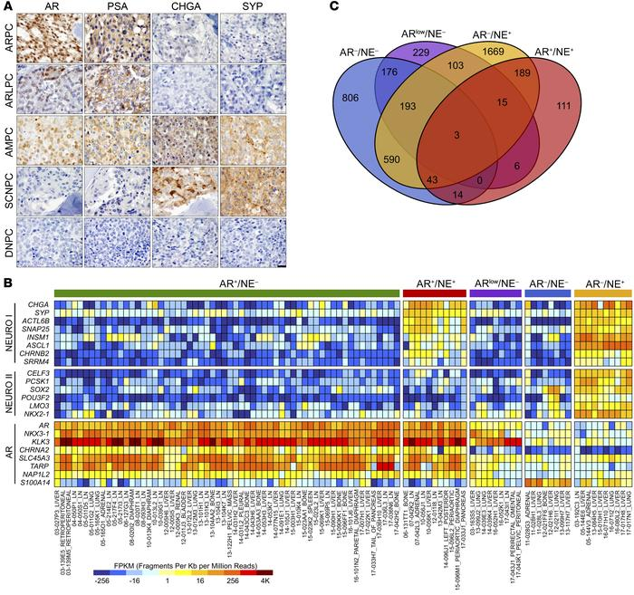 Molecular profiling of mCRPC reveals a heterogeneous disease. (A) IHC of...