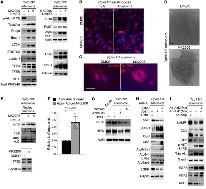 Inhibition of hyperactive AKT in mTORC1-inhibited cells rescues autophag...