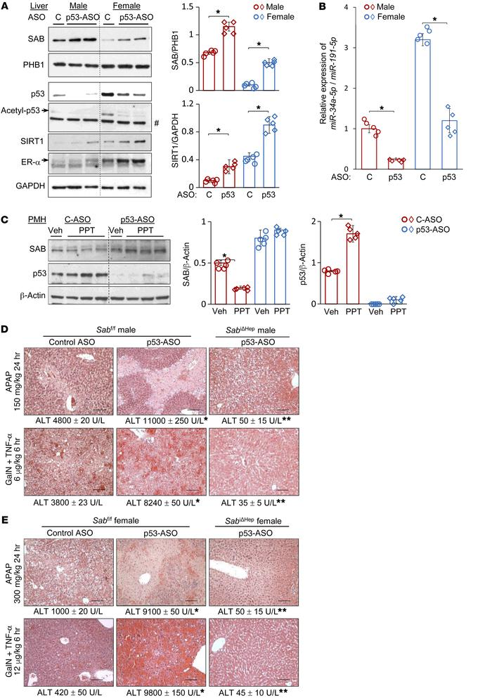 p53 modulates hepatotoxicity through SAB expression. Ten- to twelve-week...