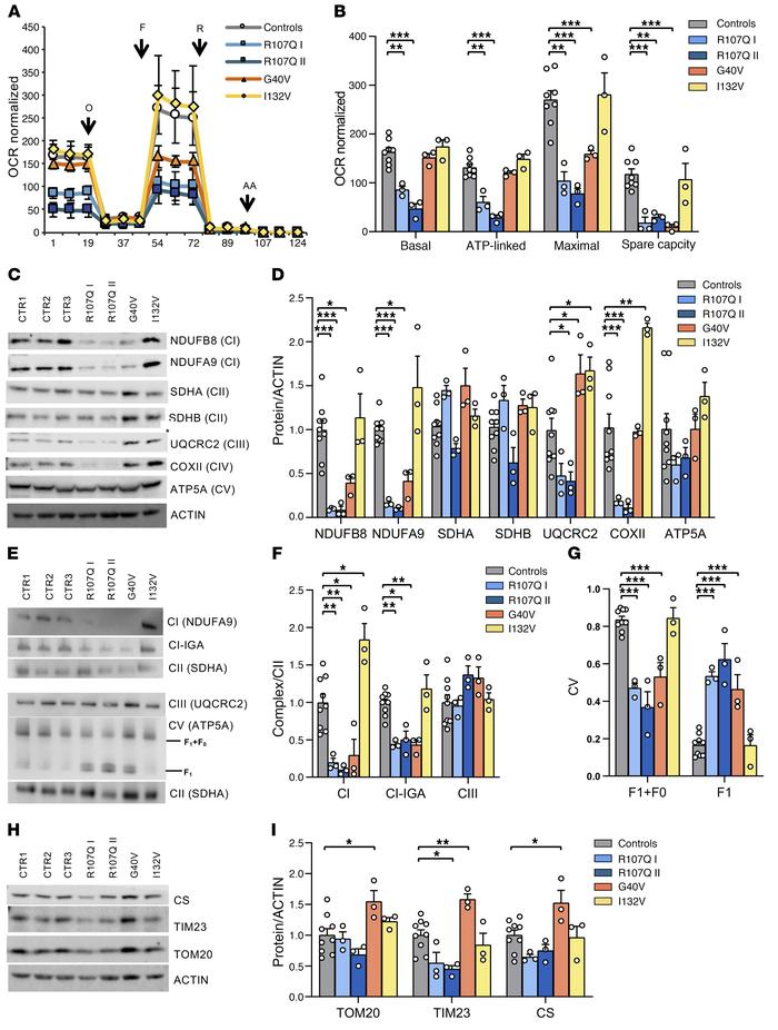 Energetic profile of SSBP1 mutated fibroblasts. (A) OCR of fibroblasts, ...