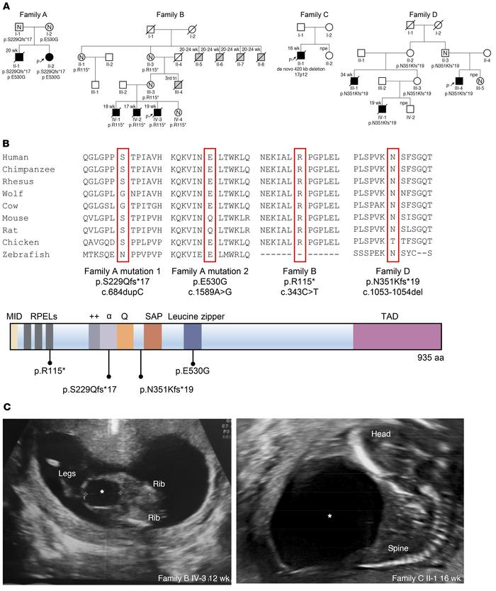 Identification of MYOCD variants in 4 families with congenital megabladd...