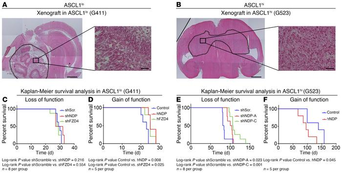 Effects of NDP on progression of GBM in vivo depend on ASCL1 expression ...