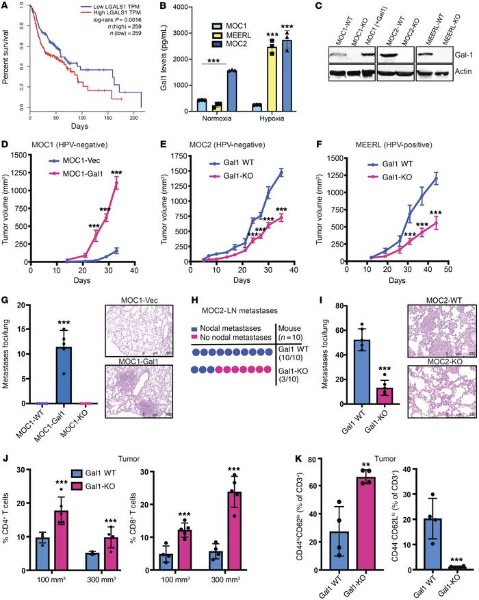 Gal1 promotes tumor growth and metastases in a HNC model by causing immu...