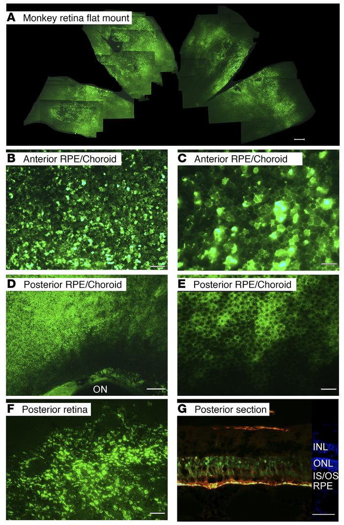 Widespread expression of GFP 3 weeks after suprachoroidal injection of A...