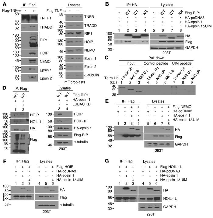 Recruitment of epsin to TNFR1 complex in response to TNF-α stimulus and ...