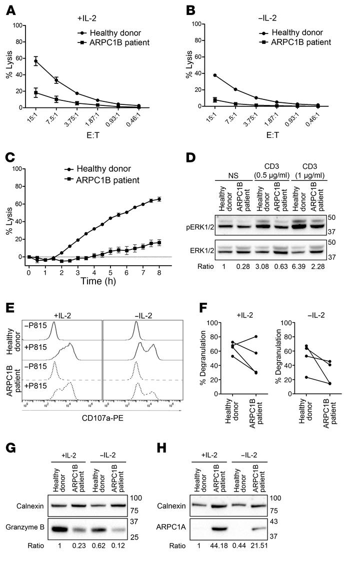Absence of ARPC1B affects CTL effector functions. (A and B) Percentage l...