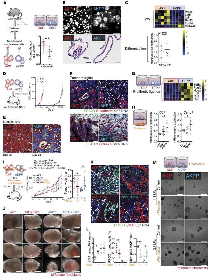 Prox1 loss generates desmoplastic tumors in the presence of activated K...