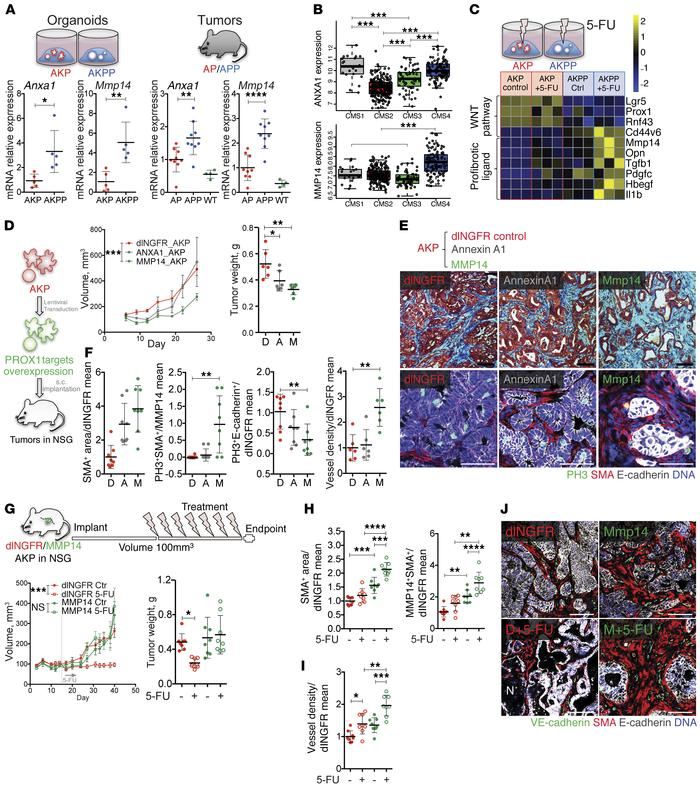 The PROX1 target MMP14 recapitulates tumor desmoplasia, angiogenesis, an...