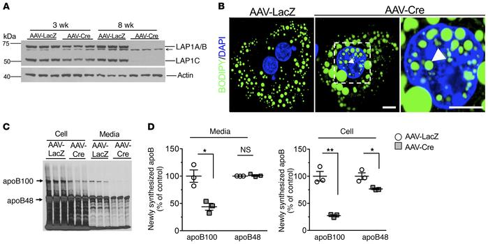 Intranuclear and increased cytoplasmic lipid droplets and reduced apoB10...
