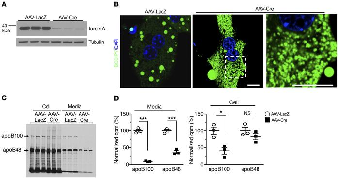 Increased cytoplasmic lipid droplets and reduced apoB100 secretion in he...