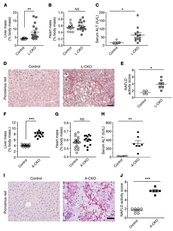 NASH phenotypes in L-CKO and A-CKO mice. (A) Liver–to–body mass ratios o...