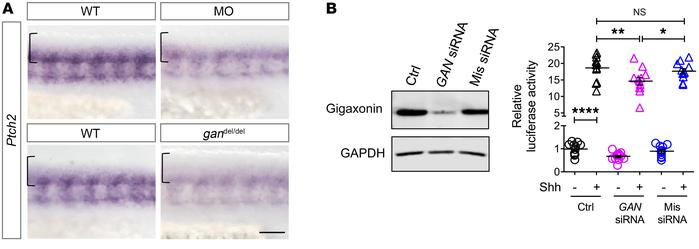 Gigaxonin depletion induces a decrease in Shh activation in zebrafish an...