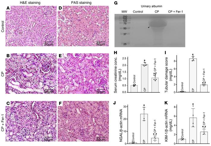 Ferroptosis inhibition attenuates cisplatin-induced AKI. Cisplatin treat...