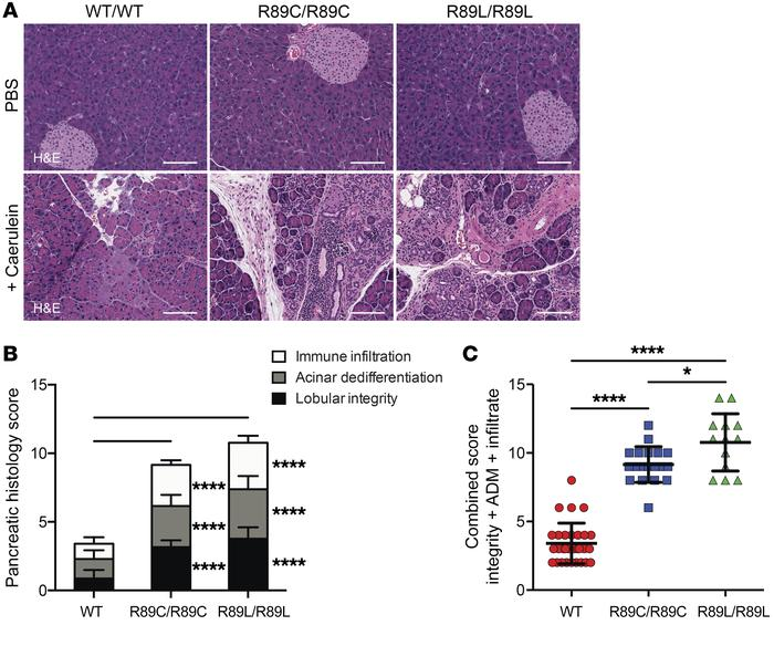 Cela3b-mutant mice show increased pancreatic injury following induction...