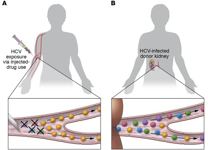 Transmission of HCV from donor organs does not encounter the genetic bot...