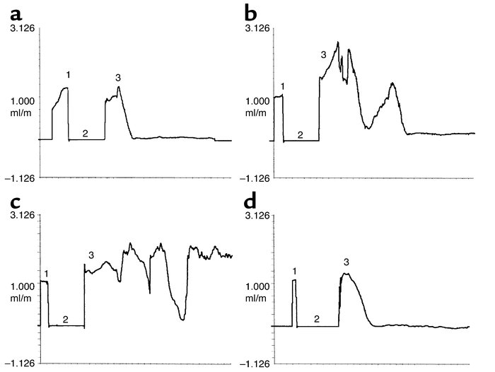 Characteristic flow patterns in response to FeCl3 injury. After recordin...