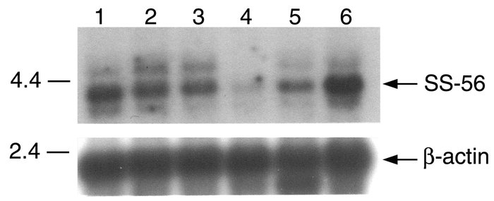 Northern blot analysis of SS-56 mRNA expression in normal human tissues....