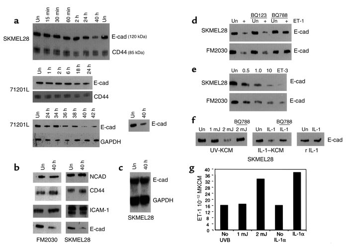Downregulation of E-cadherin by ET-1 in melanoma cells (SKMEL28) and mel...