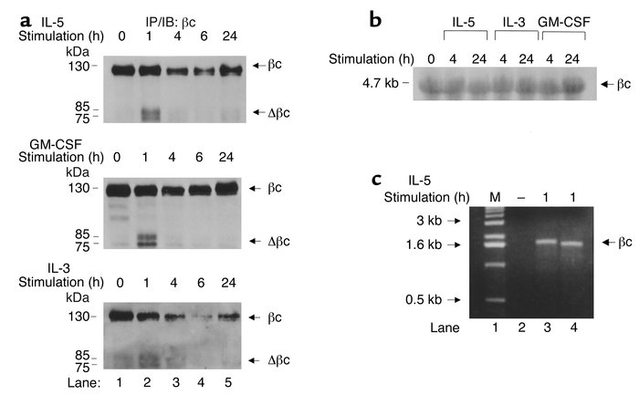 IL-5 reduces βc protein expression, while transiently increasing faster-...