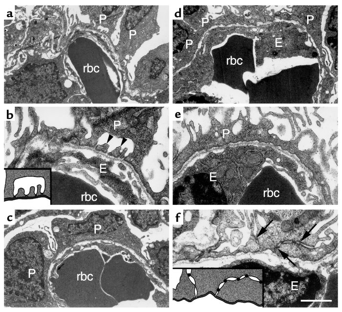 Ultrastructural analysis of podocytes from control and Lmx1b–/– newborn ...