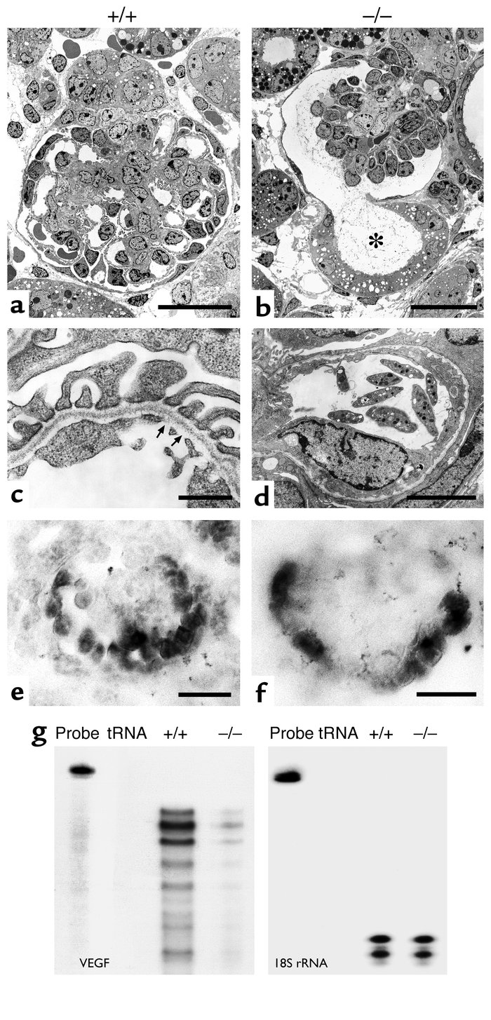 Development of the glomerular capillaries in Lmx1b–/– mice. A comparison...