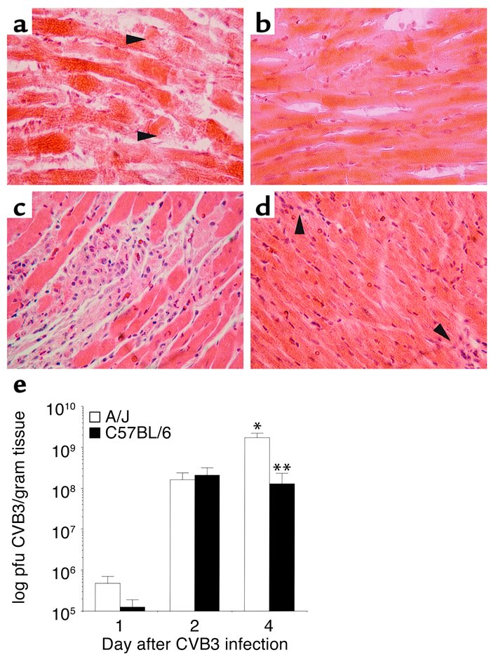 A/J mice are more susceptible to CVB3 myocarditis. At 4 days after infec...
