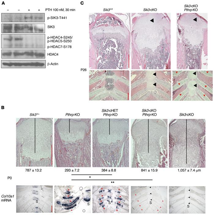 Sik3 deletion rescues perinatal lethality of Pthrp-deficient mice. (A) ...