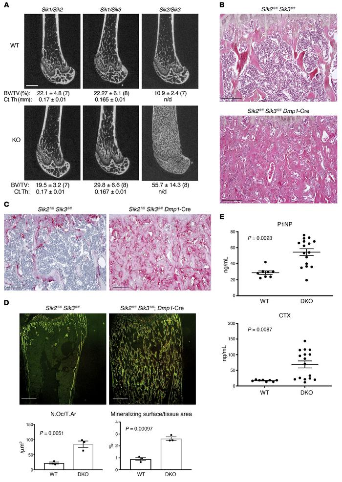 Combined SIK2/3 deletion in osteoblasts and osteocytes causes high bone ...