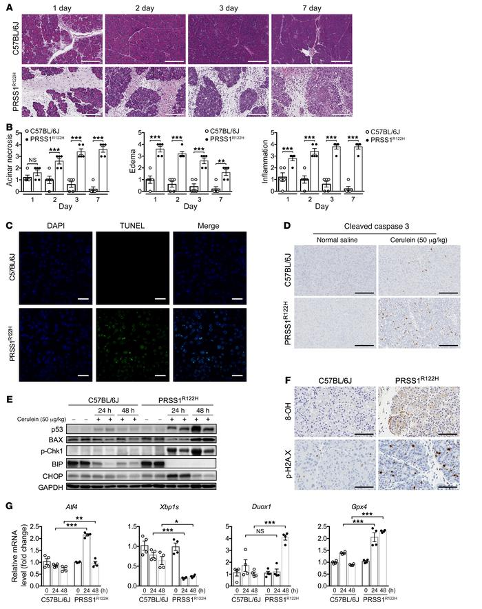 Progressive pancreatic damage and activation of stress signaling pathway...