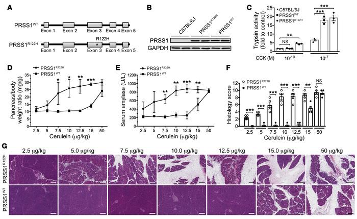 PRSS1R122H mice were more sensitive to induction of pancreatitis than we...