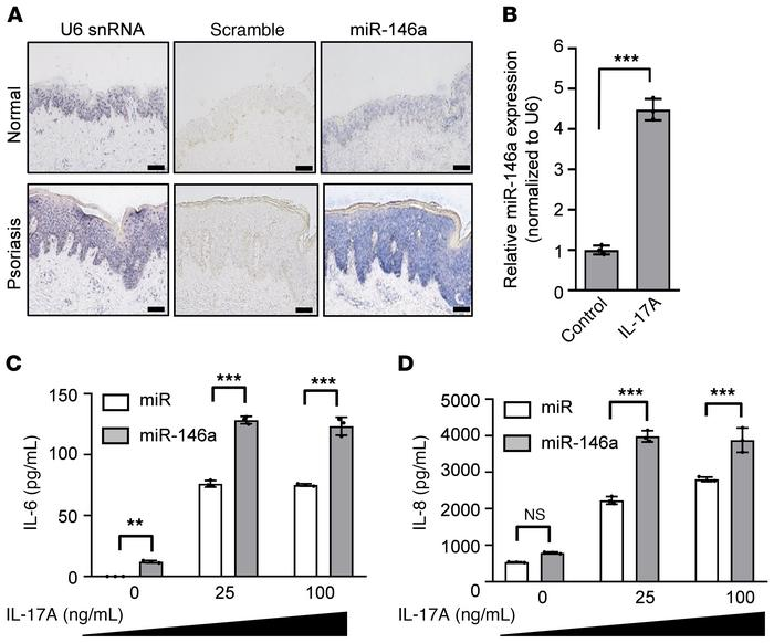 MiR-146a is upregulated in the epidermis of psoriatic lesions; this miRN...