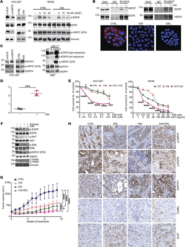 IVM reduces EGFR phosphorylation levels via HSP27 regulation of SHPTP1. ...