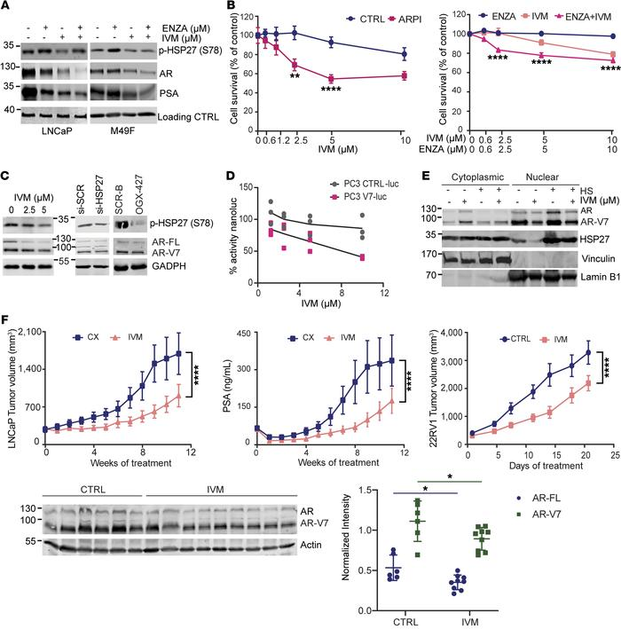 Ivermectin inhibits AR and AR-V7 to potentiate AR pathway inhibitors in ...