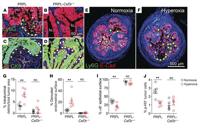 PMNs simultaneously promote and inhibit PRPL tumor growth, with the 2 ef...
