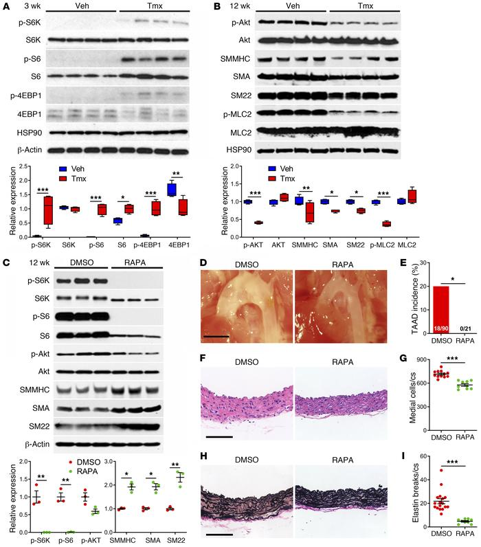 mTOR activation and inhibition in Tsc1-deficient aortas. Tsc1fl/fl Myh11...