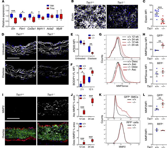 Tsc1 deletion in SMCs causes impaired elastogenesis and greater elastol...