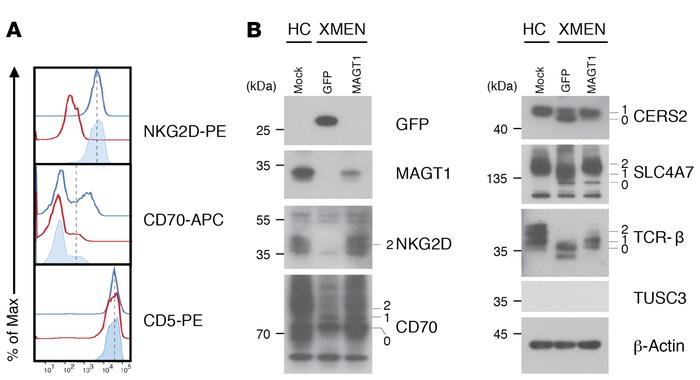 Rescue of N-glycosylation by MAGT1 mRNA transfection in XMEN T cells. (A...