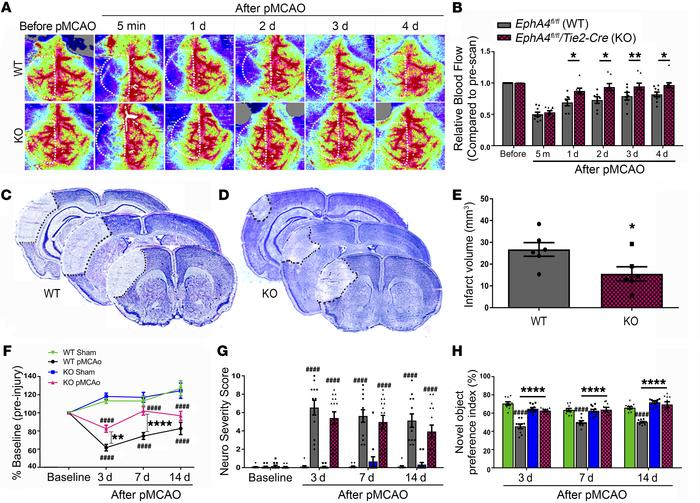 Increased CBF and reduced infarct volume in EC-specific KO mice followin...