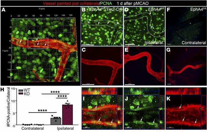 Increased cell proliferation within the MCA-ACA collateral niche of KO m...