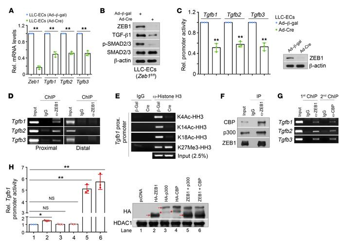 ZEB1 deletion epigenetically represses TGF-β signaling in LLC tumor ECs....