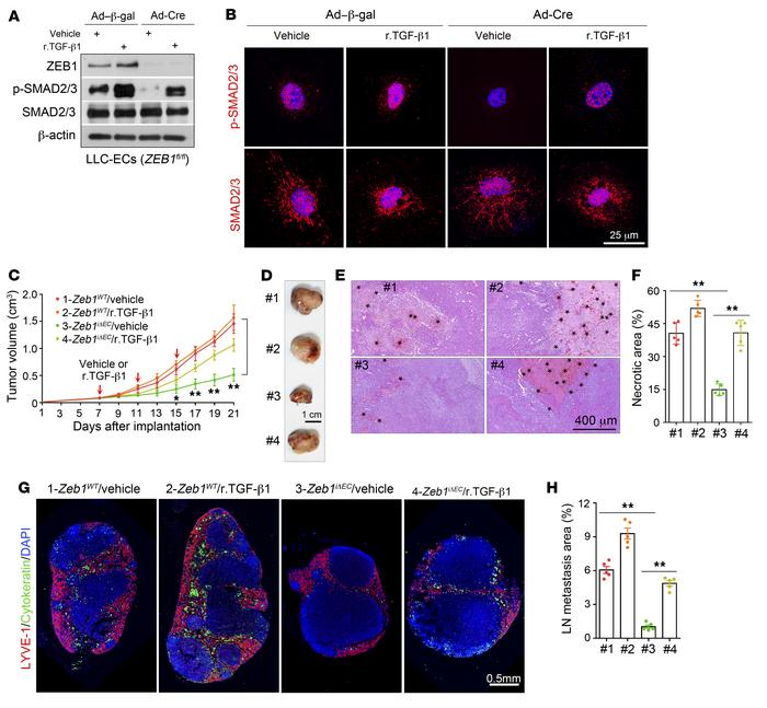 Treatment of Zeb1iΔEC mice with r.TGF-β1 protein recovers impaired tumor...