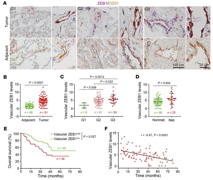 Vascular ZEB1 expression correlates negatively with survival rates in lu...