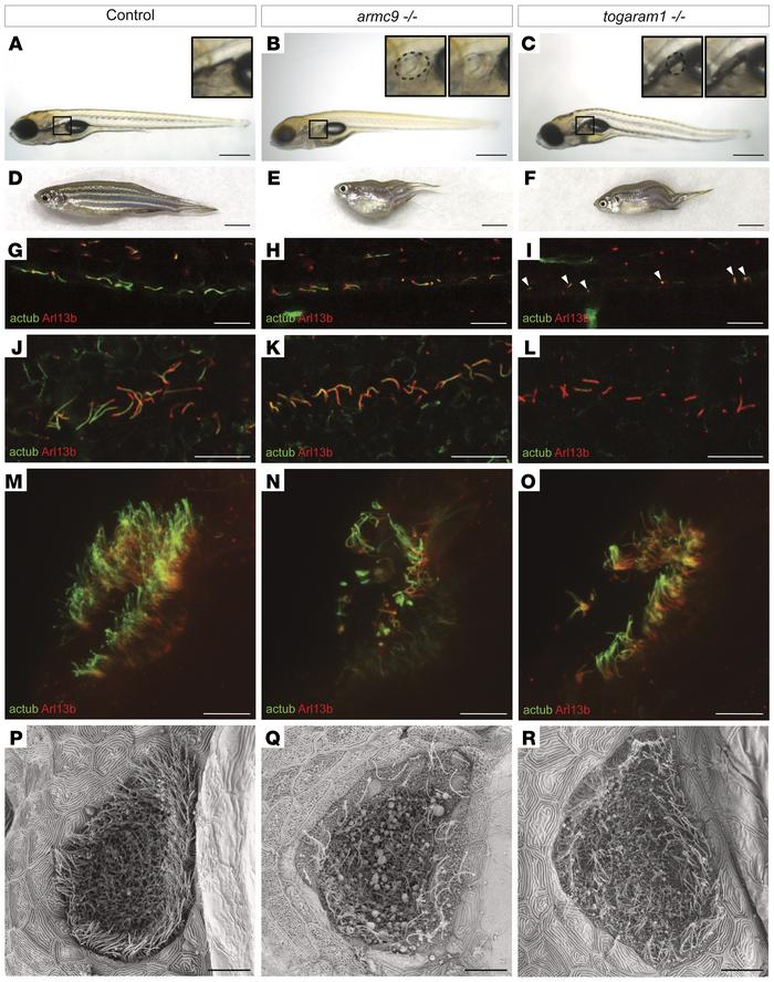 armc9- and togaram1-mutant zebrafish display ciliopathy-associated phen...