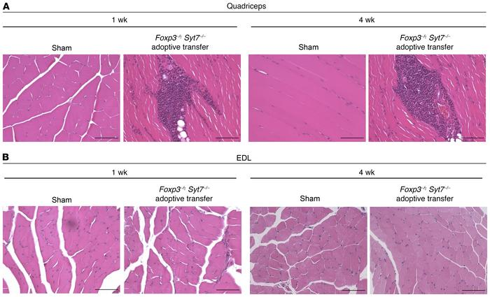 Distal skeletal muscle is spared from inflammation in an adoptive transf...