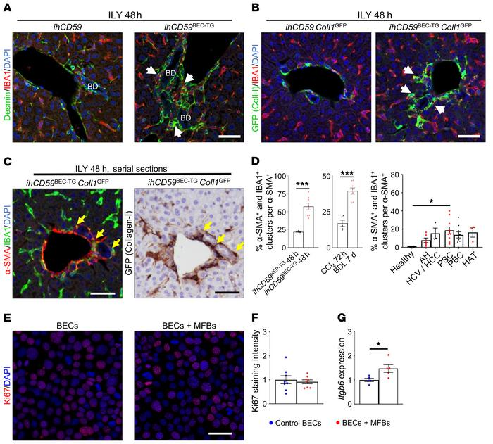 Myofibroblast activation is closely related to macrophage accumulation a...
